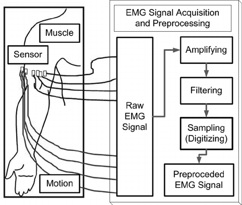Block diagram of the procedure for EMG data acquisition