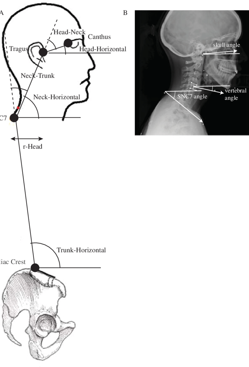 hight resolution of  a head neck and trunk angles and r