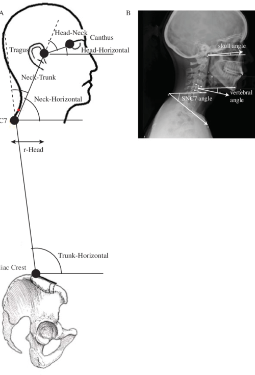 small resolution of  a head neck and trunk angles and r
