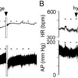Effect of hemorrhage or hydralazine on arterial pressure ...