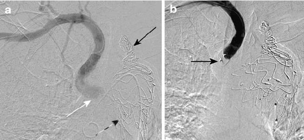 Subclavian artery embolisation for type II endoleak. a Pre