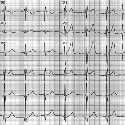 Electrocardiogram revealed an incomplete right bundle