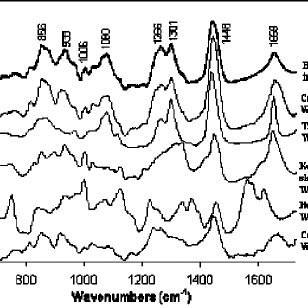 Raman spectra of human skin and its primary chemical