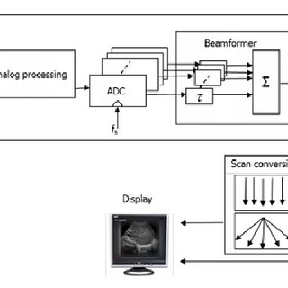 (PDF) Adaptive Weight Computation Processor for Medical