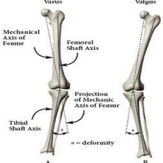 Mechanical axis of normal and deformed tibio- femoral