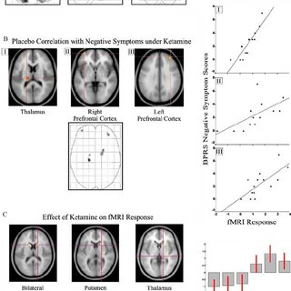(PDF) Individual Differences in Psychotic Effects of