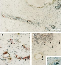 double label immunohistology of a pig fetal gut xenograft in scid mice a [ 850 x 1067 Pixel ]