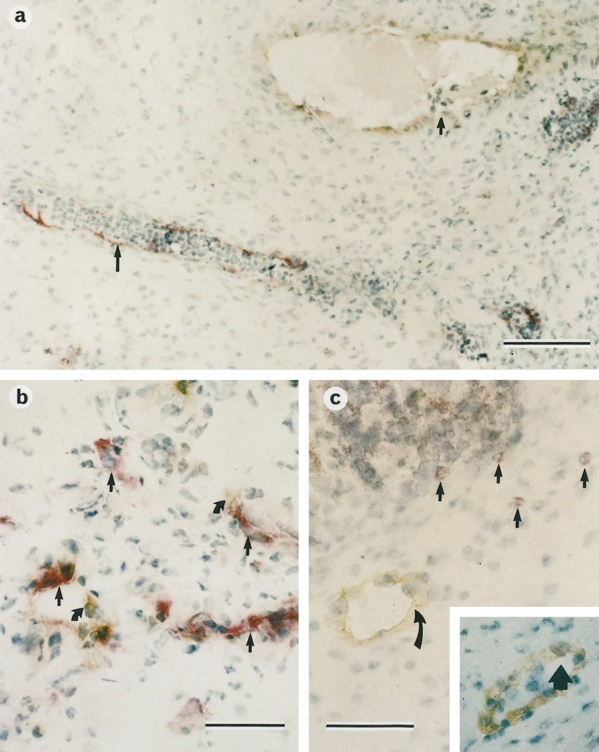 medium resolution of double label immunohistology of a pig fetal gut xenograft in scid mice a