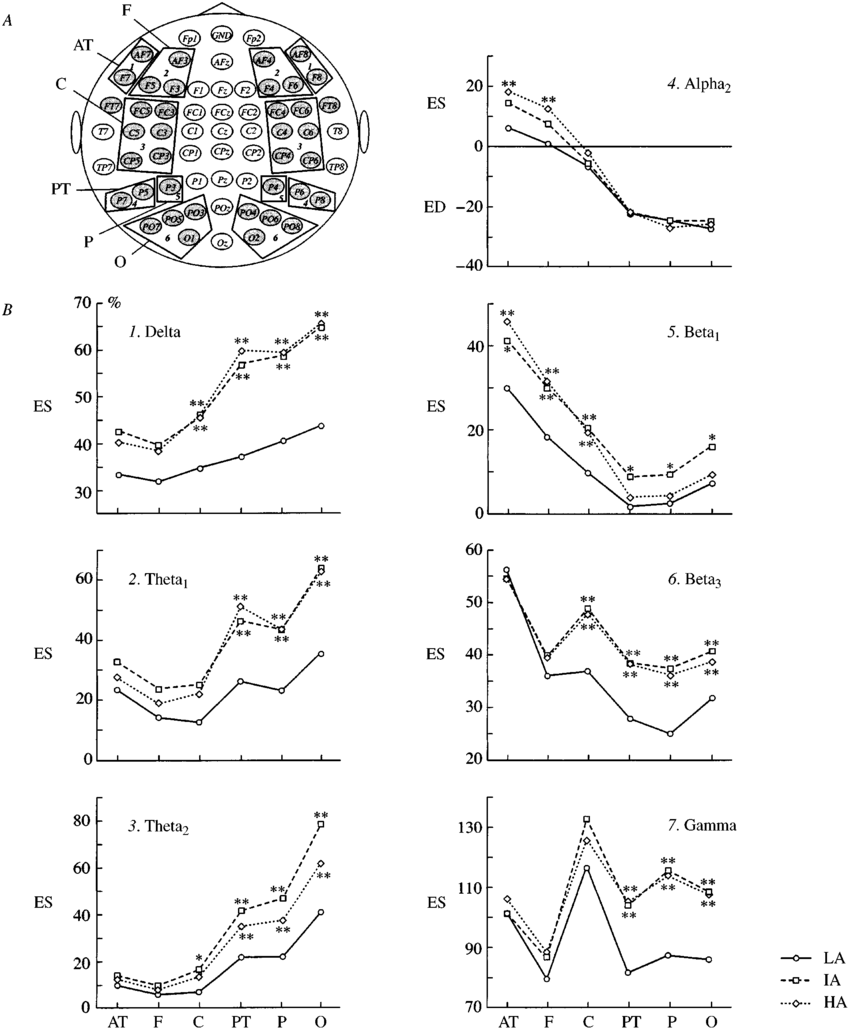 Topography of the distribution of recording electrodes and