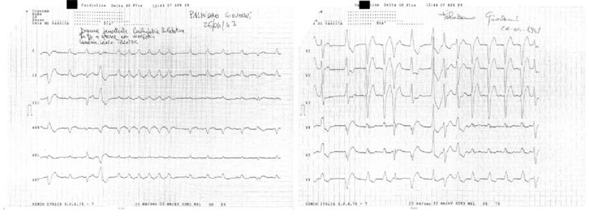 ECG: normal sinus rhythm with left bundle branch block
