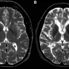 Brain Diagram Thalamus Window Ac Fan Motor Wiring T2 Hypointensity In Multiple Sclerosis (ms): T2-weighted Fast Spin-echo... | Download Scientific ...