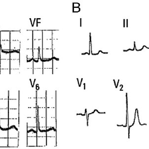 A, Electrocardiogram with dominant R wave in right