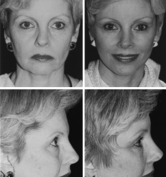this 56 year old woman underwent an endoscopic forehead lift with upper and lower [ 850 x 1276 Pixel ]