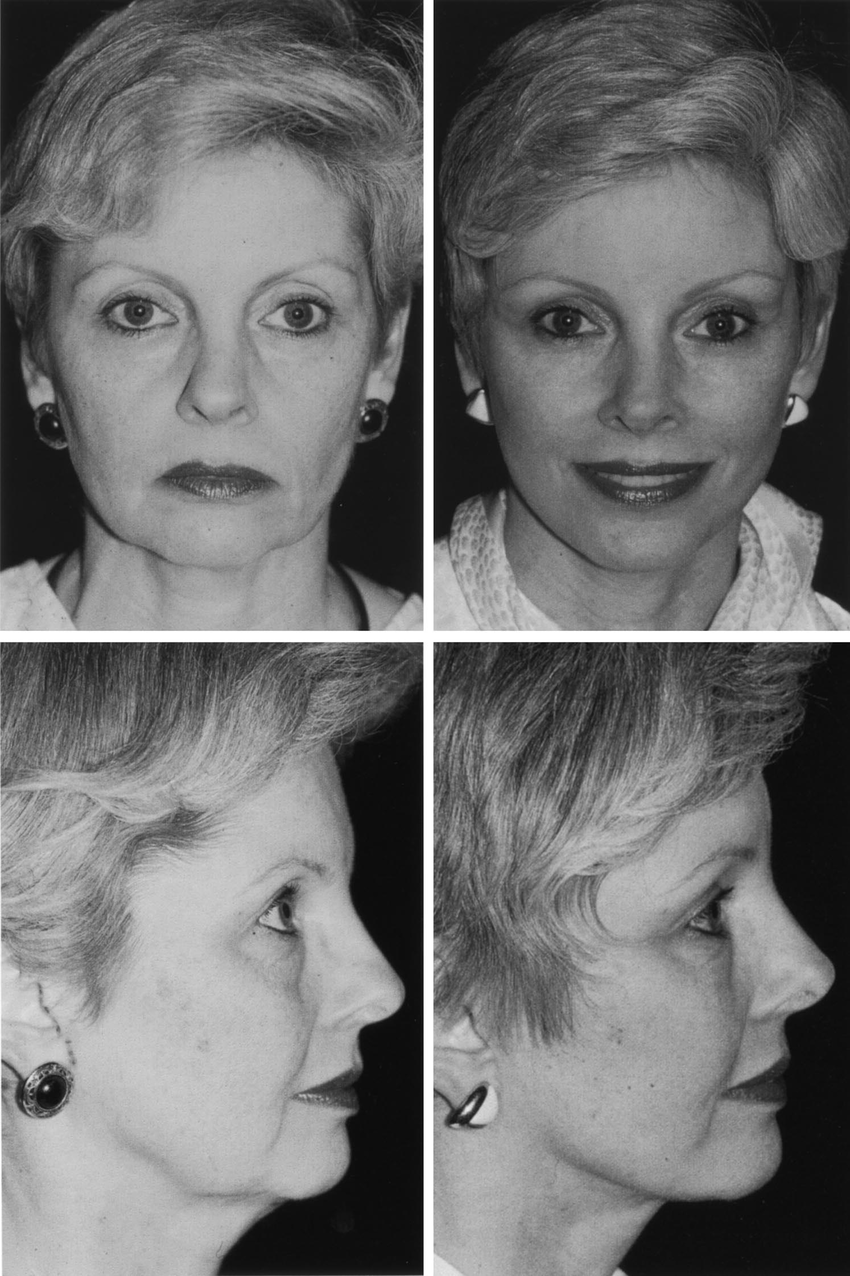 medium resolution of this 56 year old woman underwent an endoscopic forehead lift with upper and lower