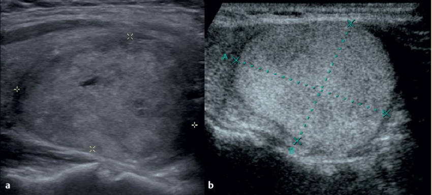 a. b Ultrasound images of patients with encapsulated FVPTC and BTN... | Download Scientific Diagram