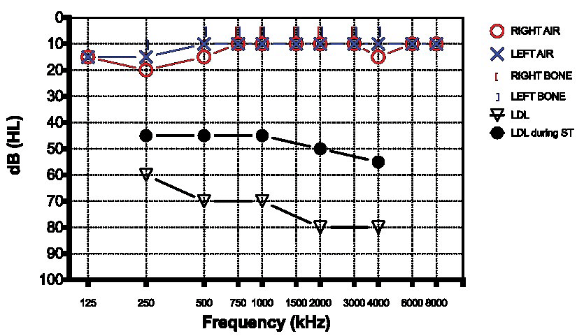 Pure Tone Audiometry for case 4 showing normal hearing for