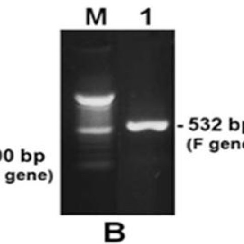 Agarose gel electrophoresis of RT-PCR products for M gene of AI ...