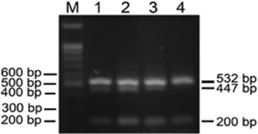 Agarose gel electrophoresis of single step multiplex RT-PCR ...