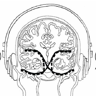 2 COMPARISON OF THE NEUROLOGICAL MENTAL STATUS EXAM TO