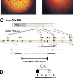fundus photographs of the patient with oguchi disease showing diagnostic metallic sheen in the light  [ 675 x 1217 Pixel ]