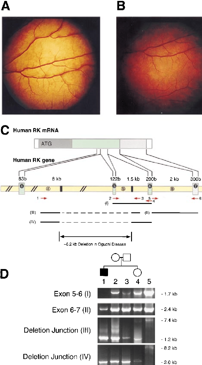 medium resolution of fundus photographs of the patient with oguchi disease showing diagnostic metallic sheen in the light