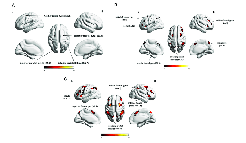   Whole-brain statistical parametric maps representing