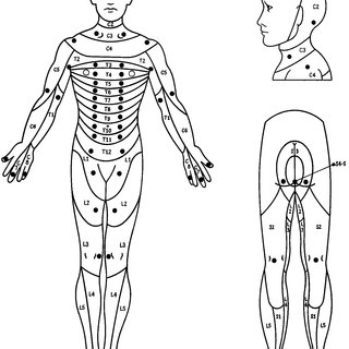 Location of the key sensory points for each dermatome
