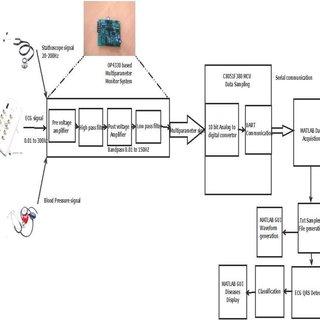 Block diagram of hardware processing of ECG signal