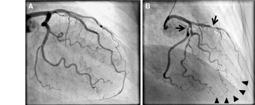 healthy heart diagram 2003 subaru stereo wiring coronary artery disease. a normal angiogram in young healthy...   download scientific ...