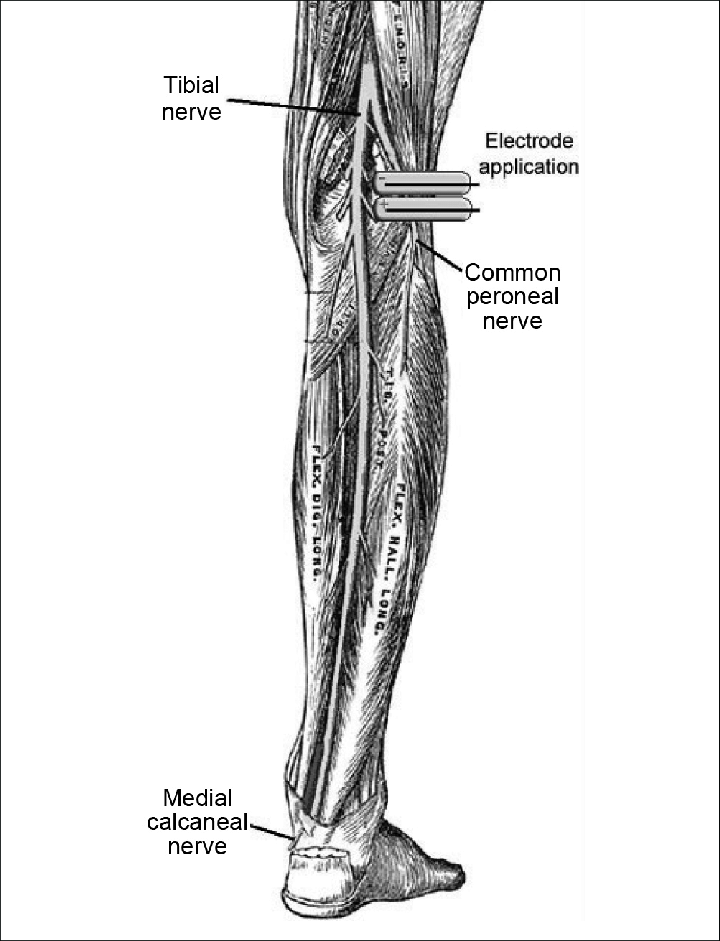 lower leg nerve diagram rv solar system wiring electrode application on the common peroneal illustration of nerves right