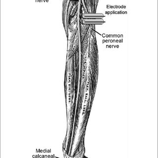 lower leg nerve diagram ford externally regulated alternator wiring electrode application on the common peroneal illustration of nerves right