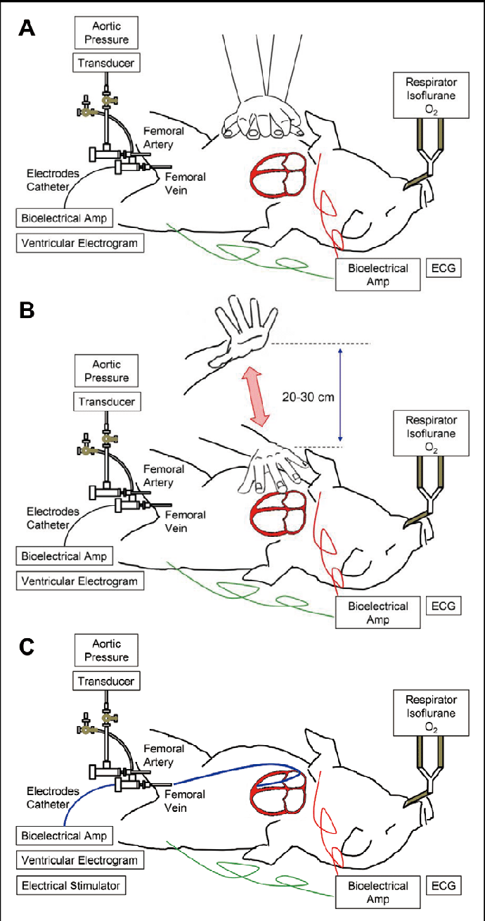 Schematic representations showing how cardiopulmonary