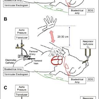 Schematic representations showing how cardiopulmonary