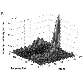 (PDF) Spectral Analysis of Heart Rate Variability during