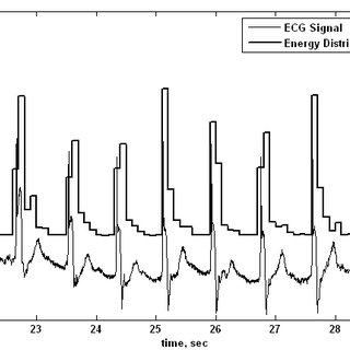 (PDF) A New Approach to ECG Peak Detection