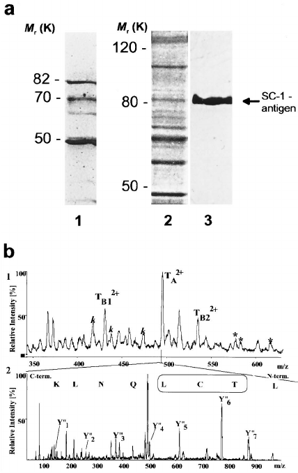 Identification of SC-1 antigens. a, protein purification