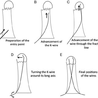 Antergrade fixation technique for displaced phalangeal