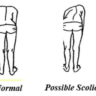 Adam's Forward Bend Test School Scoliosis Screening