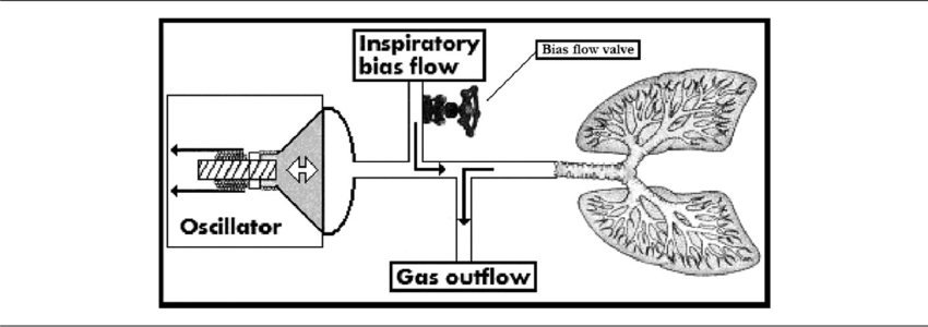 Basic design of the high frequency oscillating ventilator