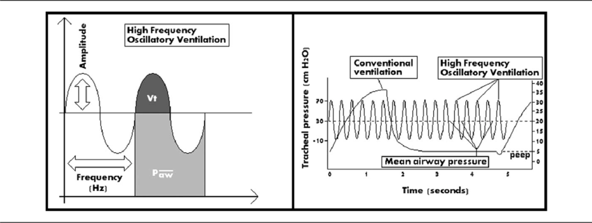 Waveforms depicting the key variables that are controlled