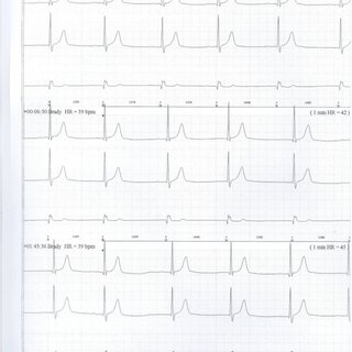 (PDF) Persistent sweating in a tetraplegic patient due to