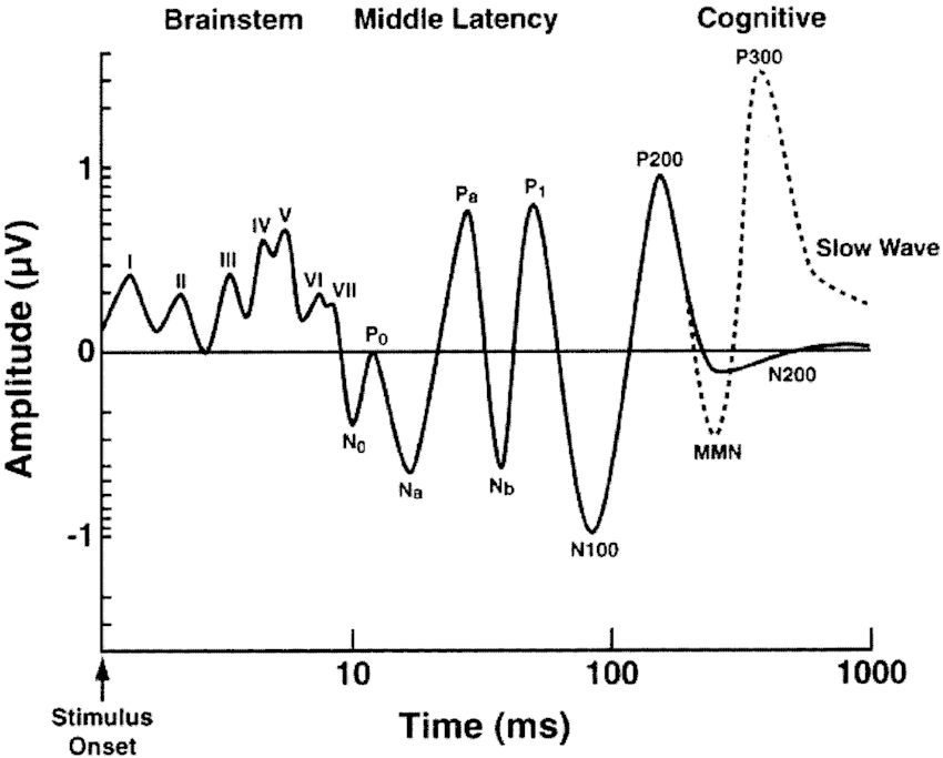 Schematic illustration of evoked and event-related brain