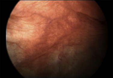 Image Cystoscopy On The Rear Wall Of The Bladder Mucosa