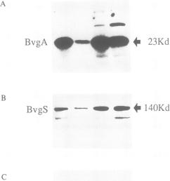 western blot analysis to detect bvga bvgs and subunit si of pertussis download scientific diagram [ 830 x 1113 Pixel ]