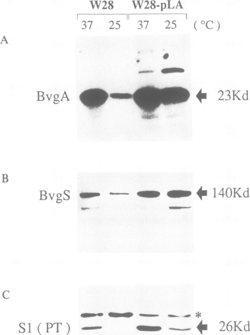 small resolution of western blot analysis to detect bvga bvgs and subunit si of pertussis download scientific diagram