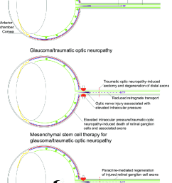 schematic diagram demonstrating the effects of glaucoma and traumatic optic neuropathy on the eye and the [ 727 x 1131 Pixel ]