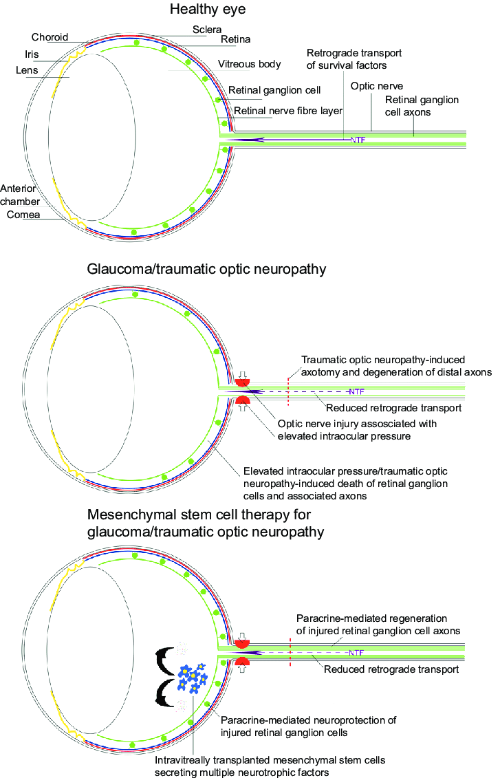 medium resolution of schematic diagram demonstrating the effects of glaucoma and traumatic optic neuropathy on the eye and the