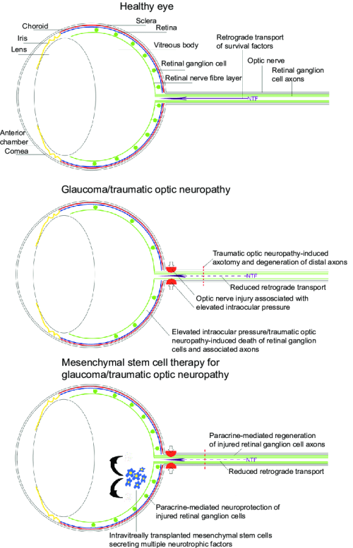 small resolution of schematic diagram demonstrating the effects of glaucoma and traumatic optic neuropathy on the eye and the