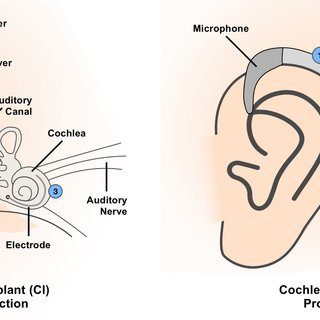 outter ear diagram labeled human wiring ge dryer timer 1 showing the structure of detailing parts outer left a cross section view cochlear implant along with