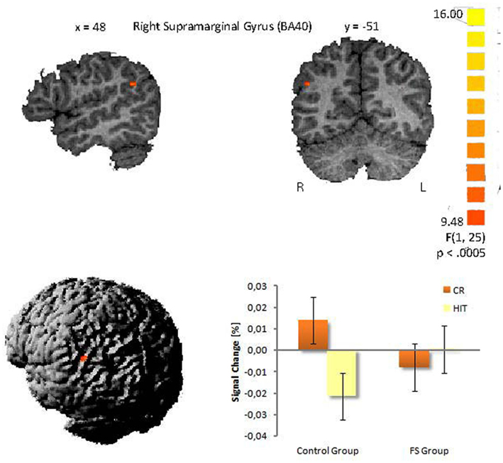 Interaction in the right supramarginal gyrus between group